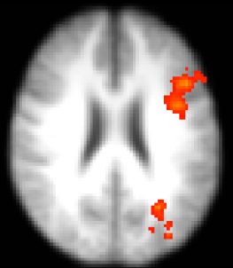 Coupe axiale d'imagerie par résonance magnétique fonctionnelle montrant l'activation unilatérale du cortex préfrontal chez les personnes jeunes lors d'un tâche d'appariement