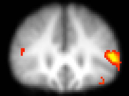Coupe coronale d'imagerie par résonance magnétique fonctionnelle montrant l'activation unilatérale du cortex préfrontal chez les personnes jeunes lors d'un tâche d'appariement
