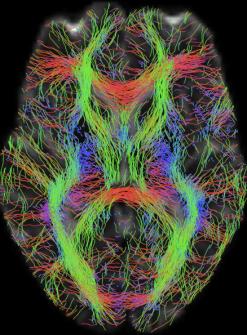 Représentation des faisceaux de matière blanche à l'aide de l'imagerie par tenseur de diffusion