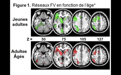 Réseaux fonctionnels contribuant à une tâche d'évocation lexicale chez des participants jeunes et âgés.